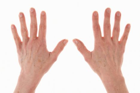 50'li yaşlarda   İleri yaşlarda sıkça görülen kahverengi lekelere, TCA (trichloroacetic asit) içeren peelingler kullanarak savaş açın. TCA, ölü deri hücrelerini kaldırıp cildin doğal rengine dönmesini ve yenilenmesini sağlıyor.